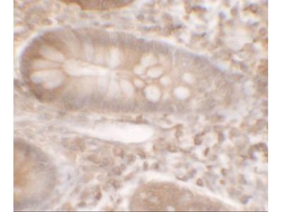 Anti-KREMEN1 antibody