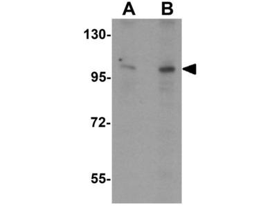 Anti-ZMIZ2 antibody