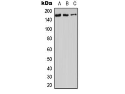 Anti-ADCY9 antibody
