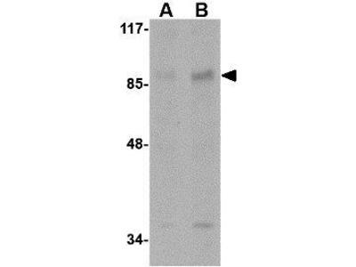 Anti-AAK1 antibody