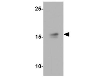 Anti-NINJ1 antibody