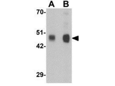 Anti-RILPL1 antibody