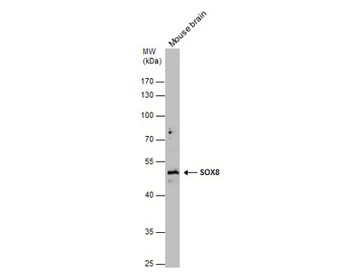 Anti-SOX8 antibody