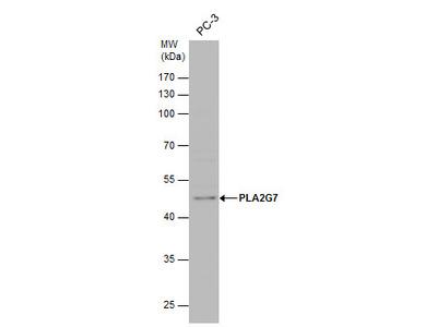 Anti-PLA2G7 antibody