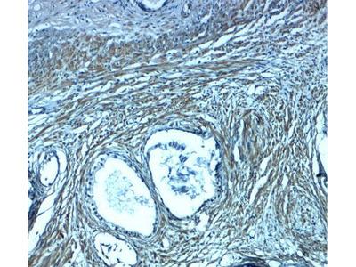 Anti-PMEPA1 antibody