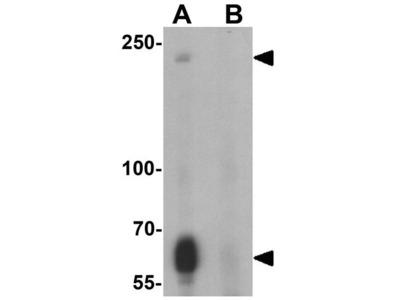 Anti-TOPAZ1 antibody