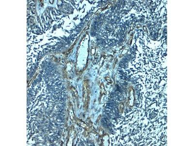 Anti-PALMD antibody