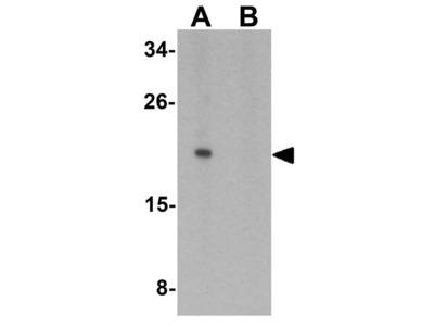 Anti-IL1F10 antibody