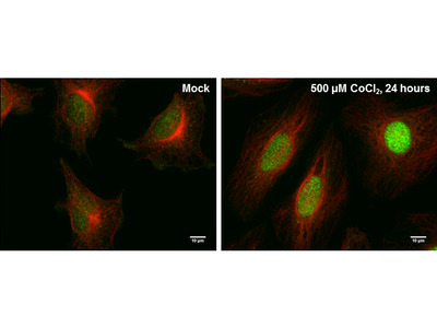 Anti-HIF2 alpha antibody [GT1689]