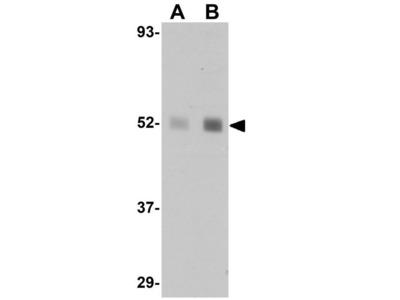 Anti-LXR beta antibody