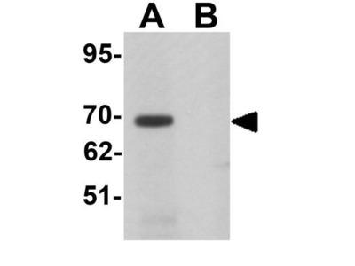 Anti-LRRTM1 antibody