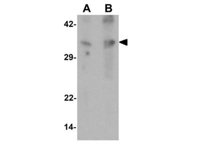 Anti-GRINA antibody