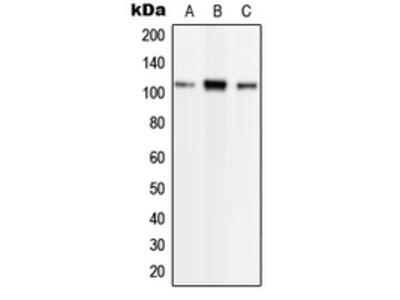 Anti-Phospholipase D2 (phospho Tyr169) antibody