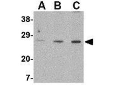 Anti-XBP1 antibody
