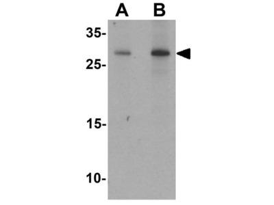 Anti-PRAS40 antibody