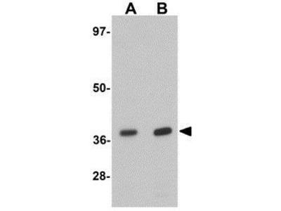Anti-EI24 antibody
