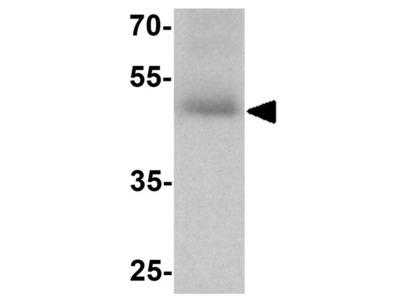 Anti-SLC29A2 antibody