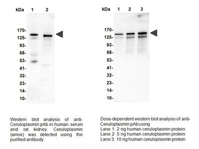 Ceruloplasmin Antibody
