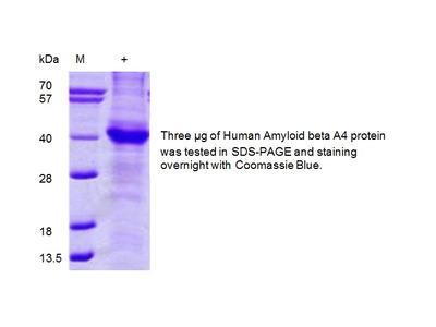 APP (His-tagged), human recombinant