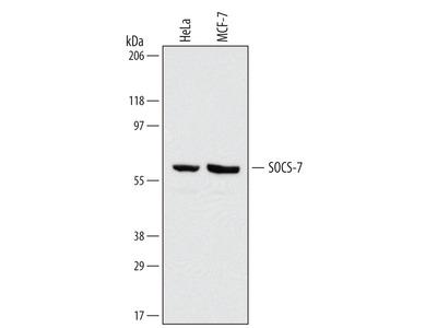 SOCS-7 / Nck / NAP4 Antibody