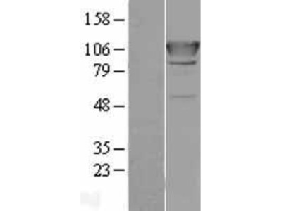 Transient overexpression lysate of alanyl-tRNA synthetase (AARS)