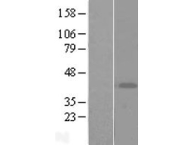 Transient overexpression lysate of ADP-ribosyltransferase 4 (Dombrock blood group) (ART4)