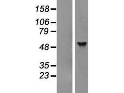 Transient overexpression lysate of adenosine deaminase, tRNA-specific 1 (ADAT1)