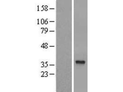 Transient overexpression lysate of hydroxysteroid dehydrogenase like 1 (HSDL1), transcript variant 1