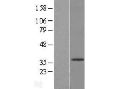 Transient overexpression lysate of hydroxysteroid (17-beta) dehydrogenase 3 (HSD17B3)