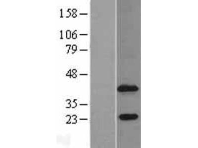 Transient overexpression lysate of 1-acylglycerol-3-phosphate O-acyltransferase 4 (lysophosphatidic acid acyltransferase, delta) (AGPAT4)