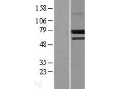Transient overexpression lysate of cAMP responsive element binding protein 3-like 2 (CREB3L2)
