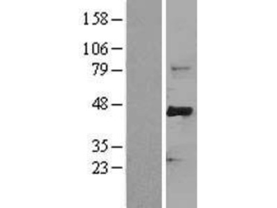 Transient overexpression lysate of F-box and WD repeat domain containing 7 (FBXW7), transcript variant 1