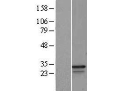Transient overexpression lysate of glyceraldehyde-3-phosphate dehydrogenase (GAPDH)