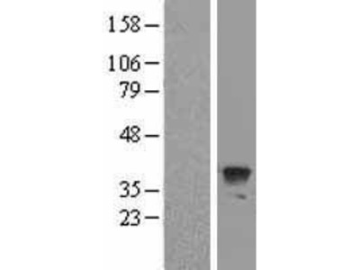 Transient overexpression lysate of ATG3 autophagy related 3 homolog (S. cerevisiae) (ATG3)