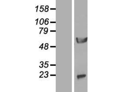 Transient overexpression lysate of aminopeptidase-like 1 (NPEPL1)
