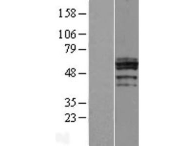 Transient overexpression lysate of carbohydrate (N-acetylglucosamine 6-O) sulfotransferase 6 (CHST6)