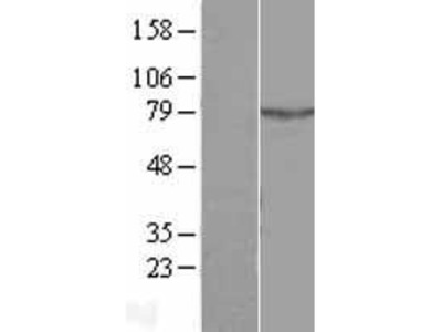 Transient overexpression lysate of amyotrophic lateral sclerosis 2 (juvenile) chromosome region, candidate 11 (ALS2CR11), transcript variant 2