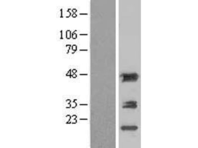 Transient overexpression lysate of aminoacylase 1 (ACY1)