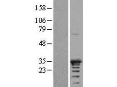Transient overexpression lysate of N(alpha)-acetyltransferase 10, NatA catalytic subunit (NAA10)