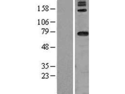 Transient overexpression lysate of aspartyl-tRNA synthetase 2, mitochondrial (DARS2), nuclear gene encoding mitochondrial protein