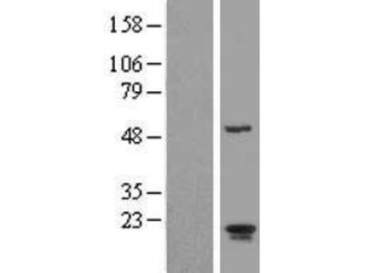 Transient overexpression lysate of ADP-ribosylation factor-like 2 binding protein (ARL2BP)