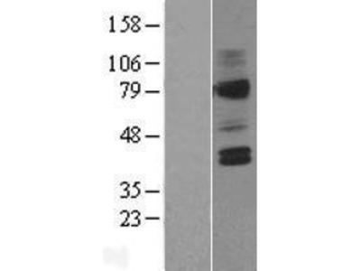 AVPR V2 (AVPR2) (NM_000054) Human Over-expression Lysate