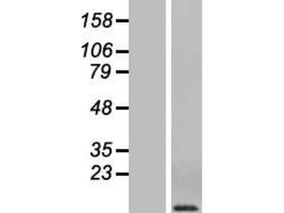 Transient overexpression lysate of chemokine (C-C motif) ligand 3 (CCL3)