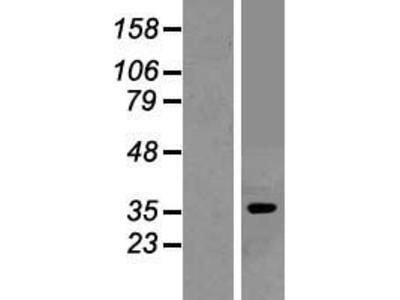 Transient overexpression lysate of adenosine A1 receptor (ADORA1), transcript variant 2