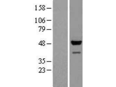 Transient overexpression lysate of glyceraldehyde-3-phosphate dehydrogenase, spermatogenic (GAPDHS)