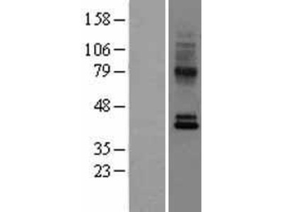 Transient overexpression lysate of chemokine (C-C motif) receptor 10 (CCR10)