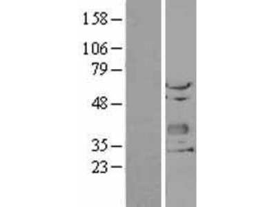 Transient overexpression lysate of chondrolectin (CHODL)