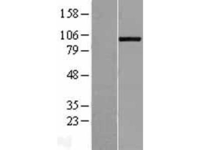 Transient overexpression lysate of ADAM metallopeptidase with thrombospondin type 1 motif, 8 (ADAMTS8)