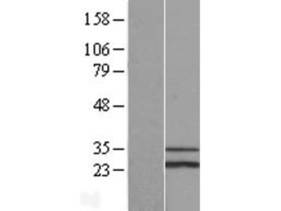 Transient overexpression lysate of SCO cytochrome oxidase deficient homolog 1 (yeast) (SCO1), nuclear gene encoding mitochondrial protein