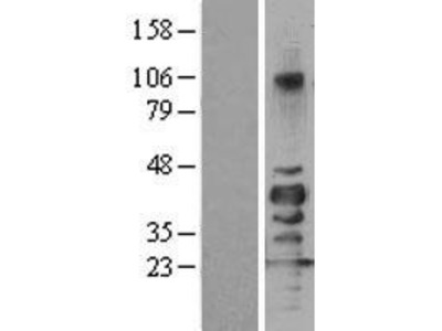 Transient overexpression lysate of sirtuin (silent mating type information regulation 2 homolog) 7 (S. cerevisiae) (SIRT7)